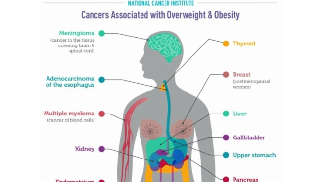 """INFOGRAPHIC: A LOOK AT """"CANCERS ASSOCIATED WITH OVERWEIGHT & OBESITY"""