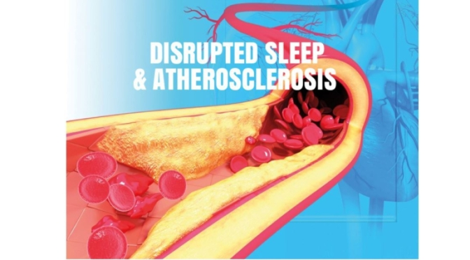 """STUDY: """"FRAGMENTED SLEEP"""" INCREASES INFLAMMATION & HARDENING OF THE ARTERIES"""