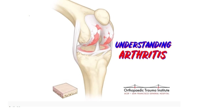 "HEALTH: ""UNDERSTANDING ARTHRITIS"" – ORTHOPAEDIC TRAUMA INSTITUTE (VIDEO)"