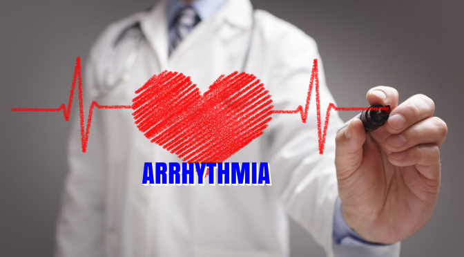"HEART ARRYTHMIAS: ""ATRIAL FIBRILLATION"" (AFIB)"