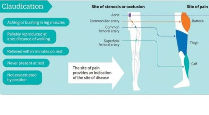 INFOGRAPHIC: EXERCISE FOR 'CLAUDICATION' (BMJ STUDY)