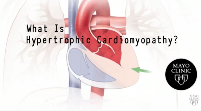 MAYO CLINIC HEART HEALTH: 'WHAT IS HYPERTROPHIC CARDIOMYOPATHY? ' (VIDEO)