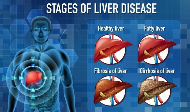 Mayo Clinic: 'When Livers No Longer Function'