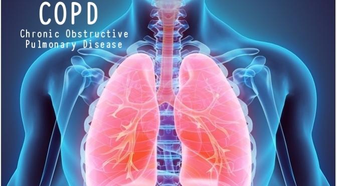 DR. C'S JOURNAL: COPD -CHRONIC OBSTRUCTIVE PULMONARY DISEASE