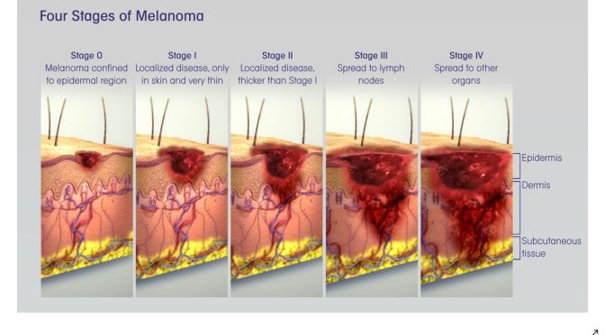 Melanoma: How To Catch Skin Cancer Early (Mayo)
