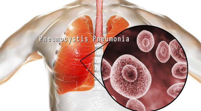 DR. C'S JOURNAL: WHAT IS PNEUMOCYSTIS PNEUMONIA?