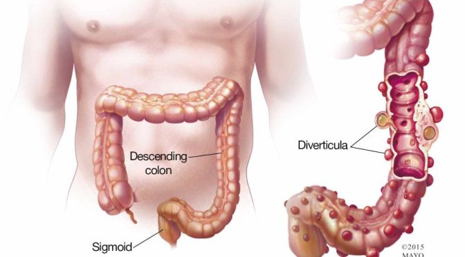 HEALTH: LOOKING OUT FOR DIVERTICULITIS (HARVARD)
