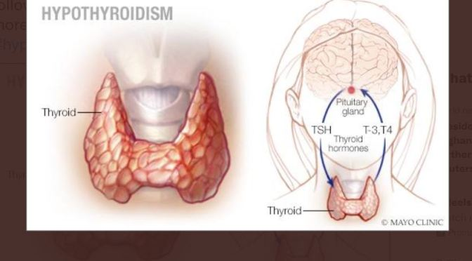 Hypothyroidism: TSH Test First, Then Hormone Test