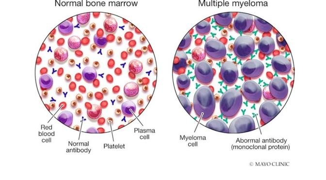 DR. C'S JOURNAL: WHAT IS MULTIPLE MYELOMA?