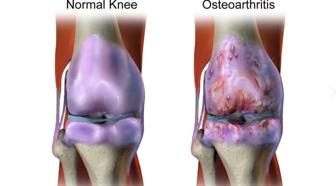 OSTEOARTHRITIS: SYMPTOMS & TREATMENT OPTIONS (UVA)