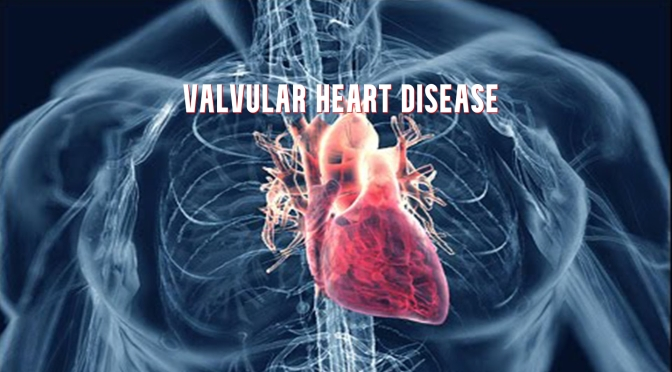 DR. C'S JOURNAL: WHAT IS VALVULAR HEART DISEASE?