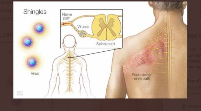 Viral Infections: Shingles