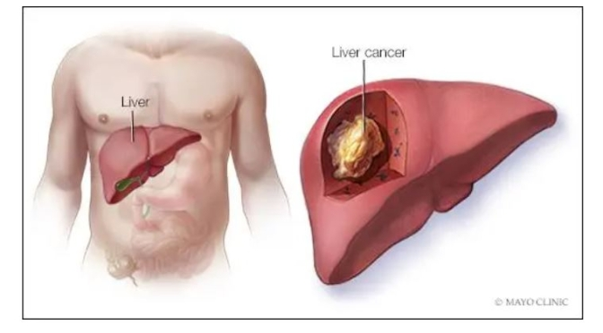 Podcast: Treating And Preventing Liver Cancer