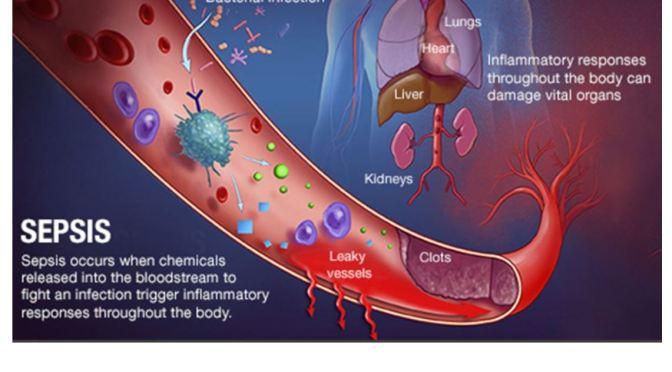 Covid-19 & Flu Can Spark Sepsis, Endangering Heart